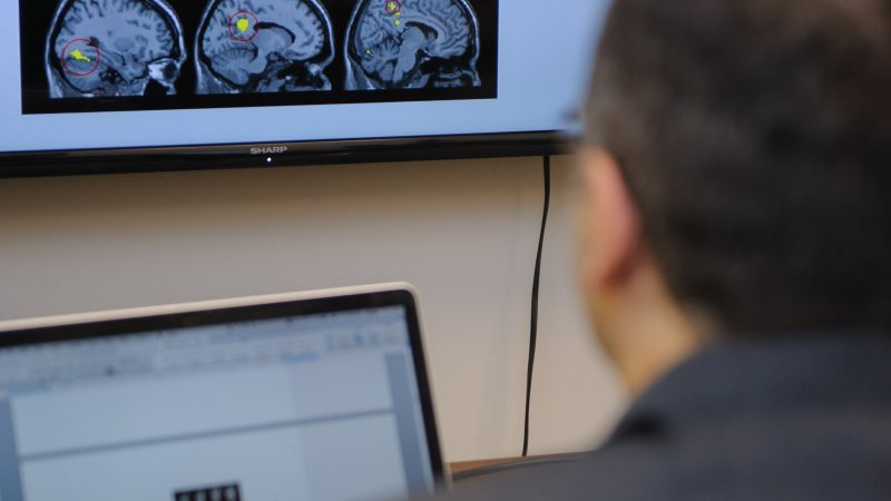 Man sitting at a desk looking at brain images